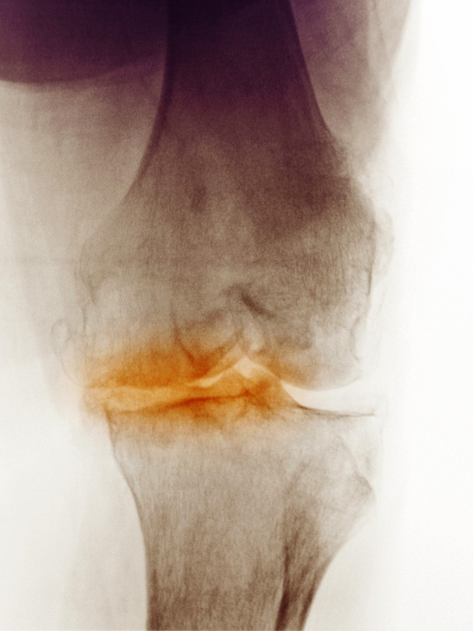 Röntgenbild einer Kniearthrose